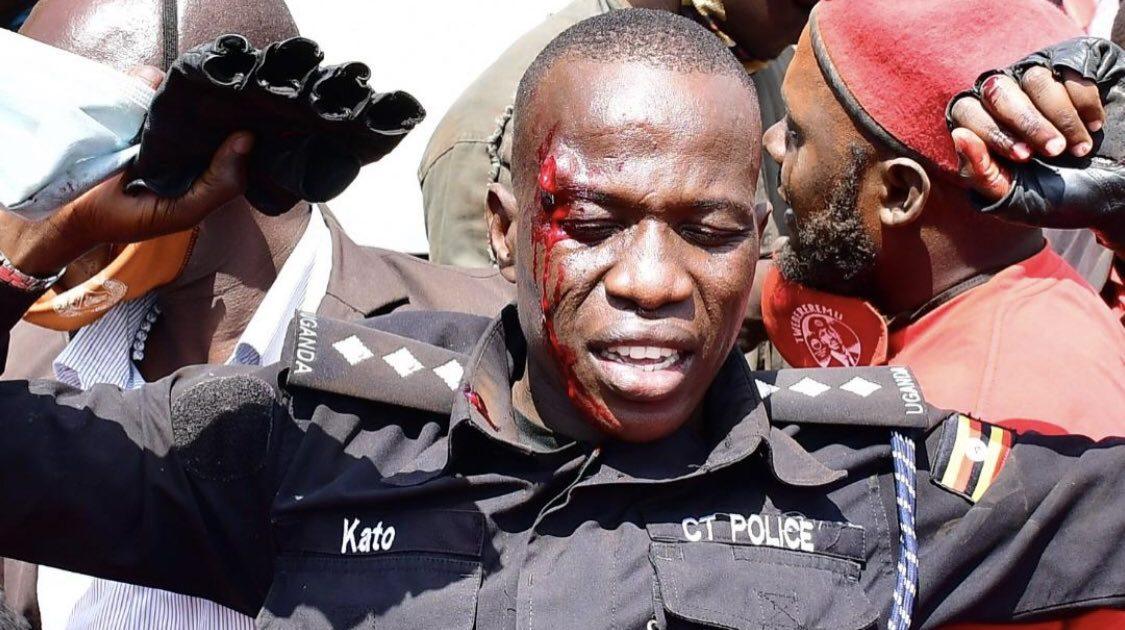 Bobi Wine Guard, Producer Dan Magic Shot in the Head - TowerPostNews